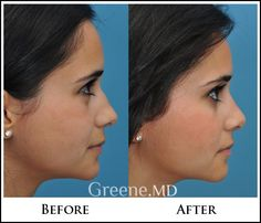 Dr. Greene's knowledge of nasal surgery and passion for rhinoplasty is evident when each patient meets him in consultation.