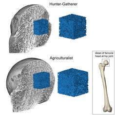 3D renderings of the femoral head at the hip joint. The femoral head has been sectioned to reveal the 3D volumes of trabecular bone for hunter-gatherers (top) and agriculturalists (bottom)..<br />