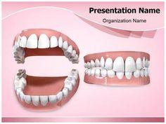 Dental Openbite Powerpoint Template is one of the best PowerPoint templates by EditableTemplates.com. #EditableTemplates #PowerPoint #Set #Dental Openbite #Dental Health #Agape #Dentistry #Gums #Enamel #Tooth #Flesh #Upper #Molar #Dental #Orthodontist #Oral Hygiene #Bite #Human Teeth #Incisor #Open #Dentist #Orthodontics #Lower #Canine