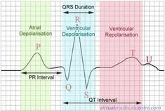 ECG waves - in preparation for my unit getting monitored beds! Arrhythmia class here I come...