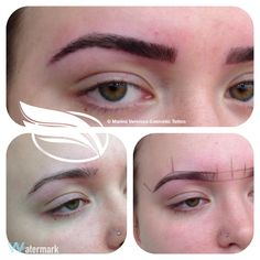 cosmetic tattoo of eyebrows using the Hairstroke technique .