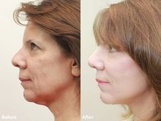 Take a look at patient C.C. after having MiniLift at Dr. Darm's Aesthetic Medicine. Visit www.drdarm.com for more information and learn how to erase years off your appearance.