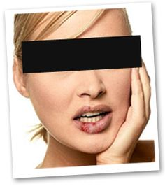 How do I get rid of Herpes?. http://oneminuteherpescure.com/herpescure2014/?hop=0