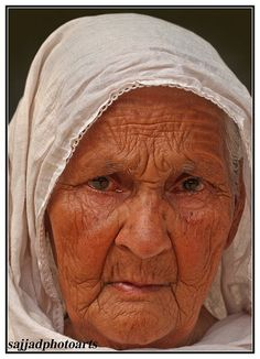 Thin nasolabial folds, lip wrinkles, frown lines, forehead wrinkles