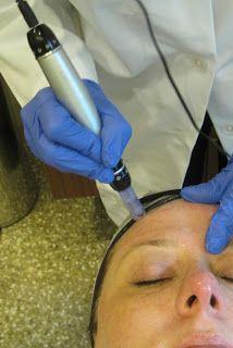 DermaPen anti-aging treatment review from Gouldylox Reviews, beauty blogger.