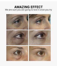 LANBENA Vitamin C Eye Mask Eye Patches Serum Remove Eye Bag Eye Lines – lanbena.official Vitamin C, Serum, Skin Allergy Test, Charcoal Mask Peel, Skin Tightening Mask, Concealer For Dark Circles, Centella, Eye Contour, Qoutes