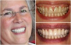 Cosmetic Dentist in San Francisco - San Francisco cosmetic dentists at Union Square Dental know how to combine the science of cosmetic dentistry with the art of creating a smile you were looking for. If you want a beautiful smile in San Francisco visit them today.