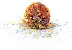 Eine einzelne Darmkrebs-Zelle: Bei diesem Bild wurden die einzelnen Bestandteile farblich hervorgehoben. Es zeigt, wie komplexnur schon ihre äussere Struktur ist.