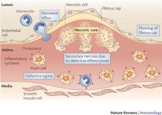Macrophage death and defective inflammation resolution in atherosclerosis