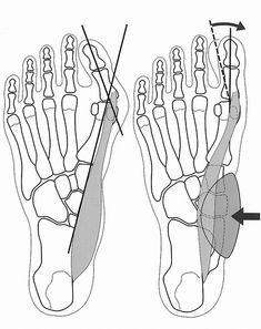 BUNION CORRECTION Promoting correction of the hallux valgus by physically stimulating the abductor hallucis muscle (abductor muscle of the big toe).