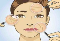 Reduced wrinkles and more elastic skin will make you look years younger thanks to this homemade eye cream. Homemade Face Cleanser, Homemade Eye Cream, Rides Front, Les Rides, Expresso, Younger Looking Skin, Younger Skin, Anti Wrinkle, Wrinkle Creams
