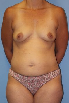 Click to see this patient's results after a Mommy Makeover including breast augmentation, tummy tuck, and liposuction of the abdomen and flanks.