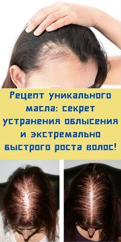 Normal Hair Loss, Stop Hair Loss, Prevent Hair Loss, Dht Hair Loss, Oil For Hair Loss, Home Remedies For Hair, Hair Loss Remedies, Natural Shampoo, Organic Shampoo