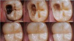 Nenhum dentista quer que esse remédio seja divulgado Remove as caries sem dor alguma