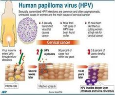 Combination HPV Diagnostic Test for Head and Neck Cancer Appears Most Accurate