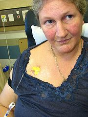 mjc-091008-8851 (wiccked) Tags: breastcancer chemotherapy portacath materhospital fec100