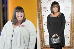 Celebrity Weight Loss Success Stories You Will Find Very Inspiring - Page 232 of 249 - Medical Matters Dawn French, Slimming Pills, Gastric Sleeve Surgery, Instant Weight Loss, Weight Loss Photos, Weight Loss Success Stories, Weight Loss Results, Weight Loss Supplements, How To Increase Energy