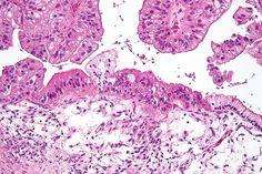 Cáncer de ovarios 4851923