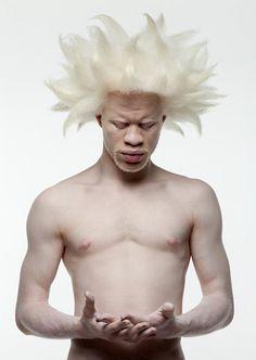 Stunning albino 'fro ..... Love :)
