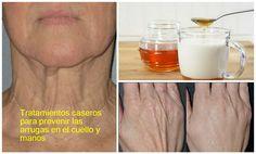 Tratamientos caseros para prevenir las arrugas en el cuello y manos   Belleza