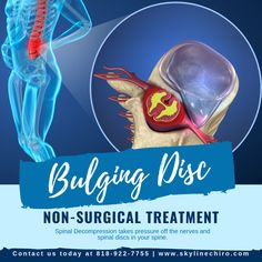 Bulging Disc Non-Surgical Treatment Nonsurgical spinal decompression takes pressure off the nerves and spinal discs in your spine. Thus giving you relief from painful symptoms. Schedule an evaluation today at Car Accident Injuries, Spinal Decompression, Van Nuys, Massage Therapy, Schedule, Timeline