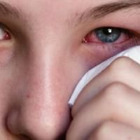 Most likely the Finest Pure Treatment for Conjunctivitis. Treatment For Conjunctivitis, Cortisol, New Kids, Health And Wellness, About Me Blog, Pure Products, Beauty, Tips, Natural