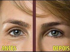 VitaminaC : Como Acabar Com Olheiras e bolsas na area dos Olhos, Como Ti...