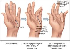 Dupuytren's contracture - Max Superspecialty Ortho Clinic