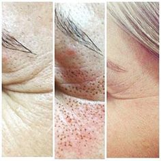 27 Great Plasma Pen Images Skin Tightening Acne Scars