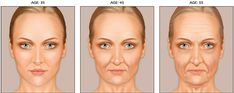 Skin    With age, skin undergoes several changes, Changes include:        Thinner skin      Drier skin      Less elastic skin      Skin more likely to wrinkle or sag      Reduction in collagen