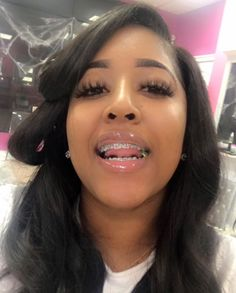 mookiefactory✨ - health and beauty Cute Braces Colors, Cute Girls With Braces, Braces Girls, Dental Braces, Teeth Braces, Black Girls Hairstyles, Cute Hairstyles, Baddie Hairstyles, Braided Hairstyles
