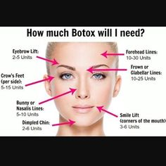How much #Botox will I need? 👌#infographic 💯 #regram from #bellairlaserclinic 👏  @drbrayplasticsurgery @bellairlaserclinic #plasticsurgery #plasticsurgeon #toronto #botox #brotox #fillers #bodytite #lipo #tummytuck #mommymakeover #breastaug #fattransfer #bbl #coolsculpting #laserhairremoval #microdermabrasion #safety #comfort #naturalresults #beautiful #friends #love #fashion #wellness #dailymotivation #lookasgoodasyoufeel yourshaperevealed 💪