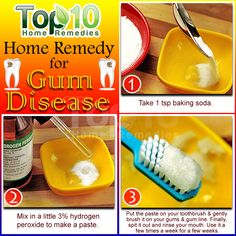 A simple and helpful home remedy for Gum Disease Mix equal parts of hydrogen peroxide and water Rinse your mouth with the solution for a few seconds and then spit it out. Gum Health, Teeth Health, Healthy Teeth, Oral Health, Dental Health, Dental Care, Healthy Snacks, Top 10 Home Remedies, Home Health Remedies