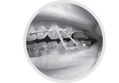 The Importance of Elastics During Orthodontic Treatment