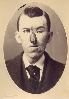 Rhinoplasty.  Loss of nose due to an injury, and replacement by a finger in 1880.  Surgery by Dr. E. Hart, photo by OG Mason, both of Bellevue Hospital, NY.  See the text description as well. Selected by Mike.