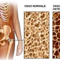 giornata mondiale dell'osteroporosi