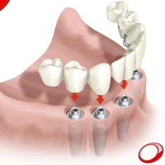 Quais os passos essenciais no processo de colocação de implantes dentários? 1-Diagnóstico 2-Orçamento 3-Preparação para a cirurgia 4-Cirurgia 5-Recuperação 6-Colocação de prótese fixa 7-Consultas de acompanhamento  Marque JÁ a sua consulta SEM COMPROMISSO: www.pnid.pt #dentista #implantes #sorriso #clínica #saúde #saudável#qualidadedevida
