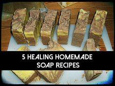 5 Healing Homemade Soap Recipes - SHTF Preparedness  ( pic looks gross but this seems interesting)