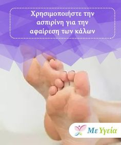 Χρησιμοποιήστε την ασπιρίνη για την αφαίρεση των κάλων  Χρησιμοποιήστε την ασπιρίνη για την αφαίρεση των κάλων! Healing, Herbs, Shoes, Zapatos, Shoes Outlet, Herb, Footwear, Therapy, Shoe
