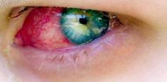 How do you know if you have pink eye? What is pink eye? Pink eye (conjunctivitis) is an irritation of The post How do you know if u have pink eye? appeared first on I Need Medic. Yellow Eyes, Pink Eyes, What Is Pink Eye, Pink Eye Causes, How To Know, Did You Know, Pink Eye Treatment, Food Recipes