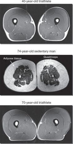 Wow!  Amazing images comparing muscle and adipose tissue in an inactive 74-year-old vs. a 70-year-old triathlete.  Getting older doesn't mean you have to lose muscle.  Keep moving!