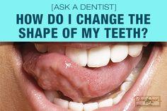 How Do I Change the Shape of My Teeth? [Ask a Dentist] - http://www.dmsdmd.com/change-shape-teeth/
