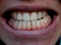 El impacto del bruximo en los dientes