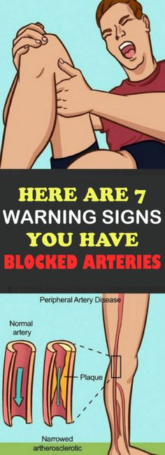 Here Are 7 Warning Signs You Have Blocked Arteries!