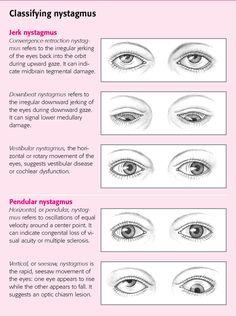 nystagmus - involuntary eye movements | nystagmus - visual, Skeleton