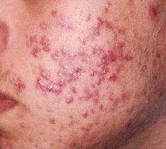 If are currently suffering from acne and the problem has started to develop into something more serious, then you might be thinking about going ahead with a treatment that is going to be more likely to solve the problem for you. If you have suffered from acne then your first treatments would have most likely been prescription facial cleansers or scrubs, antibiotics which are all very common treatment option.... FULL ARTICLE…