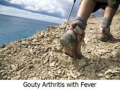 Gouty Arthritis with Fever -  Since gouty arthritis is caused by high uric acid levels that product uric acid crystals around a joint your body's immune system will try to resolve that on its own.