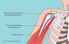 Biceps Tendinopathy Common Symptoms: Sharp spasms of pain Pain reaching for the back pocket Pain reaching for a seatbelt Night pain localized Radiations into the wrist/thumb Lump in the arm