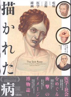 リチャード・バーネット 描かれた病 疾病及び芸術としての医学装画