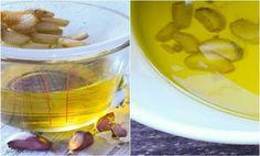 Receptek, és hasznos cikkek oldala: Így készíts fokhagymás olajat, ami eltünteti a visszereket pár hét alatt